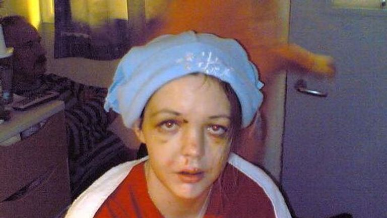 Gráinne after the accident in 2006. Pic: Gráinne Kealy