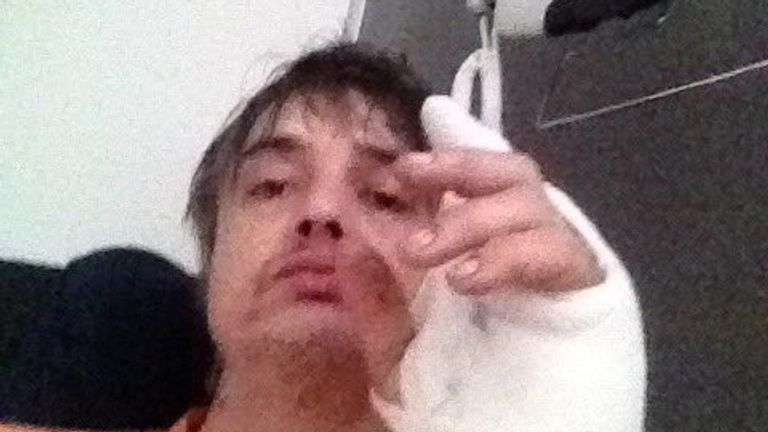 Peter Doherty was taken to hospital after being pierced by a hedgehog. Pic: Twitter/@petedoherty