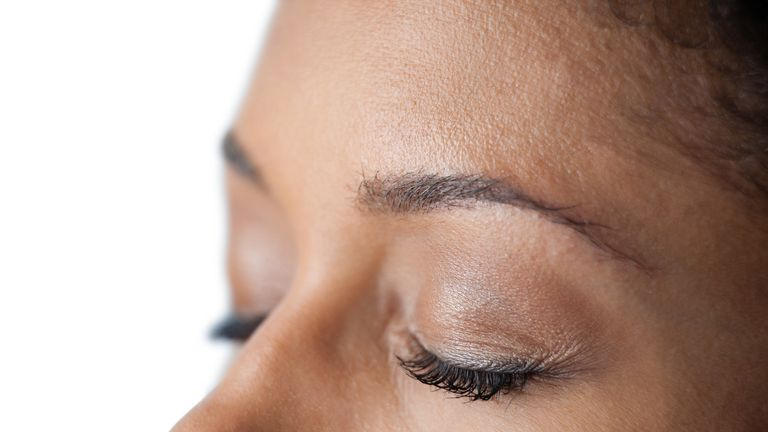 The delicate eyelid region is prone to skin cancer