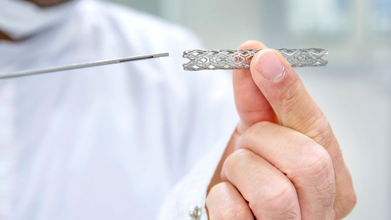 A stent is put inside the heart to keep arteries open