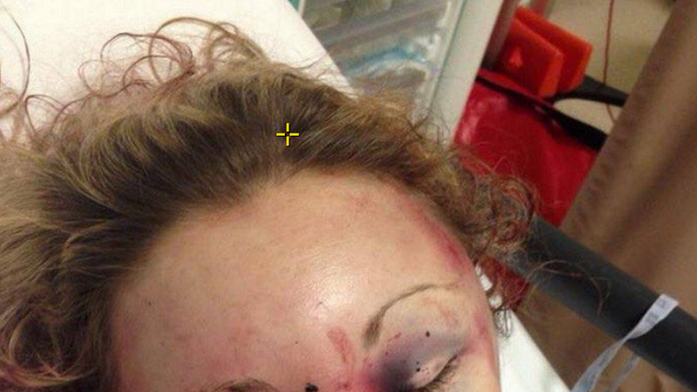 Ms Dronfield was left with a swollen face, bleed on the brain and a stab wound among other injuries