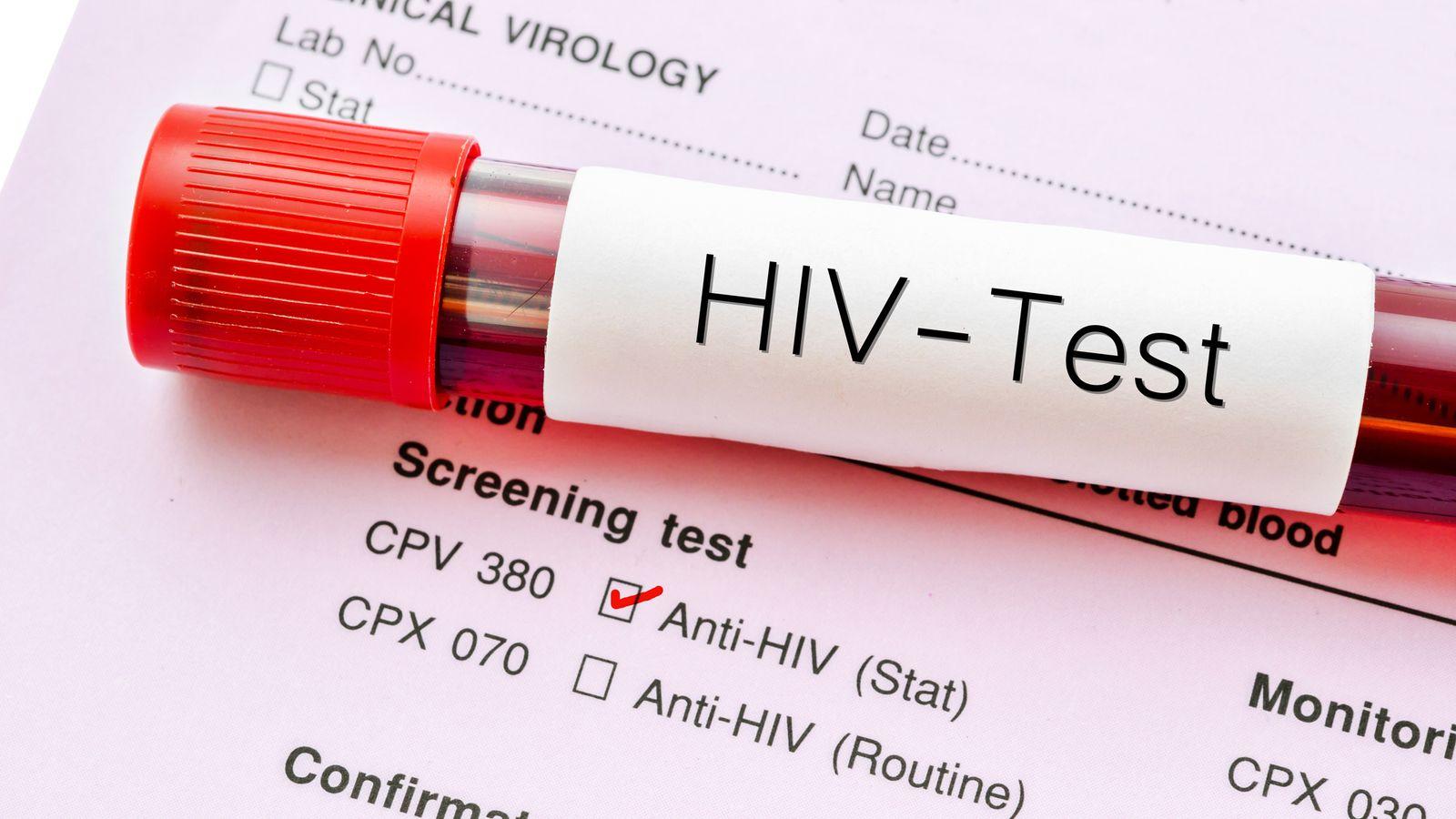 Treatment stops hiv transmission study finds uk news sky news - Test hiv p24 periodo finestra ...
