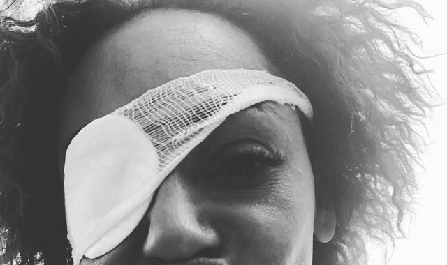 Mel B shares 'real truth' about losing eyesight