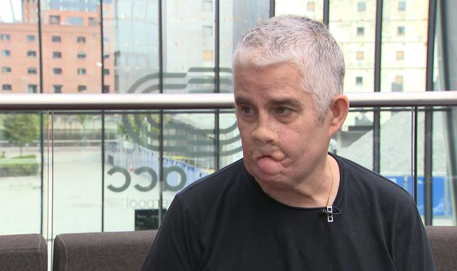 Having sepsis 'was like dying and coming back to life'