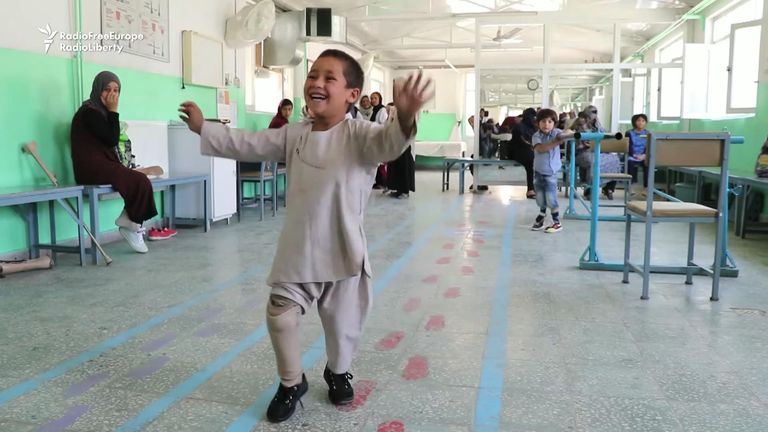 Footage showing six-year-old Afghan amputee Ahmad dancing after receiving a new prosthetic leg has gone viral