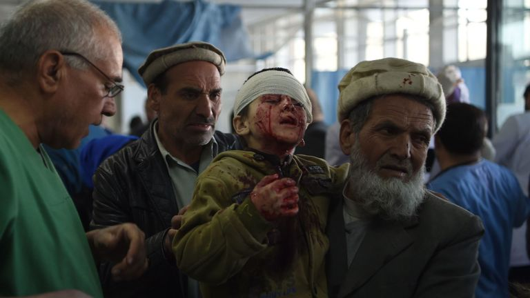 An Afghan man holds a wounded child after a car bomb exploded in Kabul
