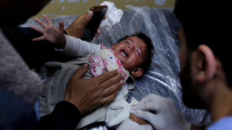An injured Palestinian baby is treated in northern Gaza