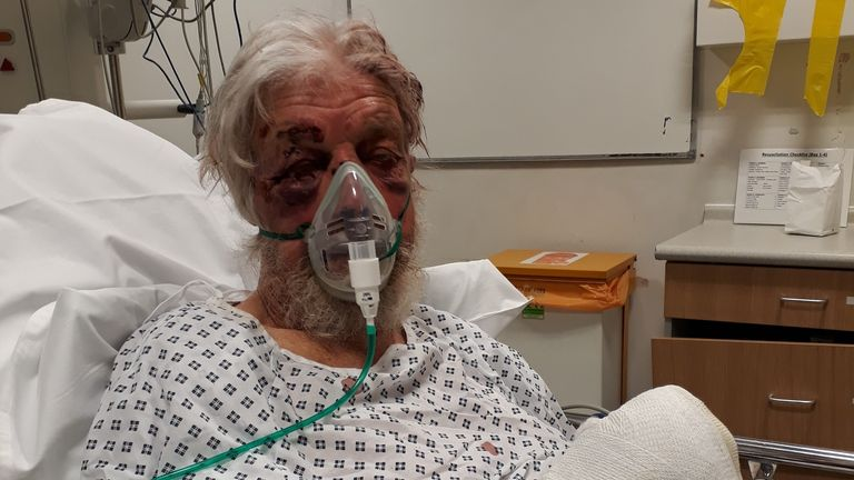 The 80-year-old victim was knocked unconscious after being shoved by a motorist