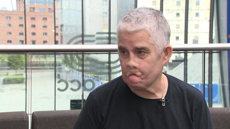 Tom Ray became a quadruple amputee after a slow diagnosis of sepsis