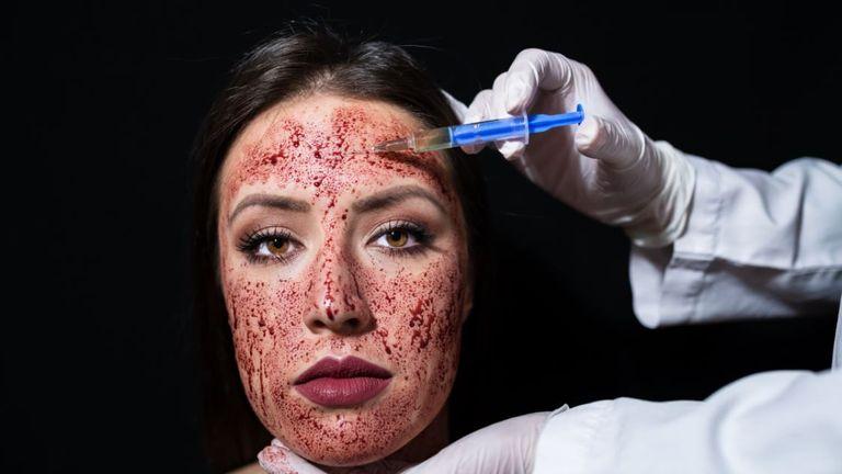 'Vampire facial'. File pic