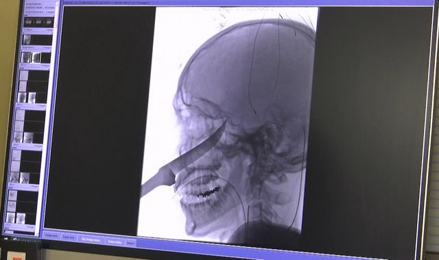 Teenager survives after 10in blade narrowly misses his brain