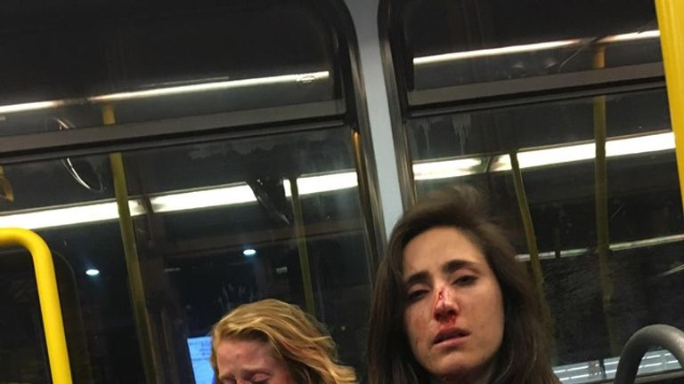 Melania Geymonat and her girlfriend Chris were left bloodied after the attack. Pic: Melania Geymonat
