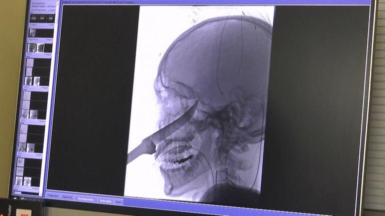 Eli Gregg's brain scan