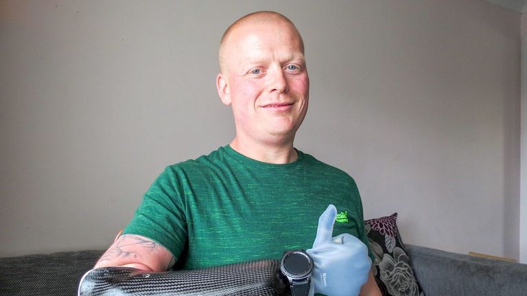 Ian McDonald opted for a prosthetic instead of a 'hoo' offered by the NHS. Pic: Digby Brown