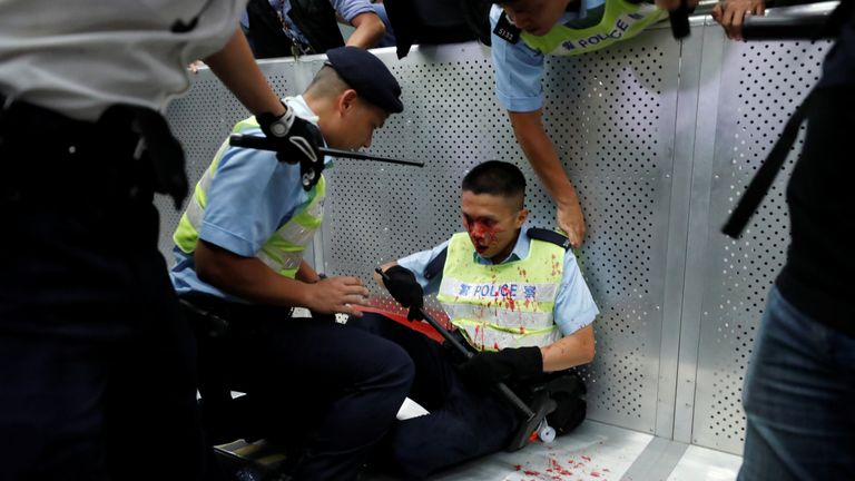 Protests against the extradition bill turned violent late on Sunday evening