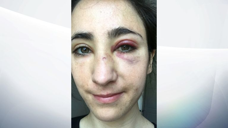 Melania Geymonat had a swollen, black eye several days after the attack