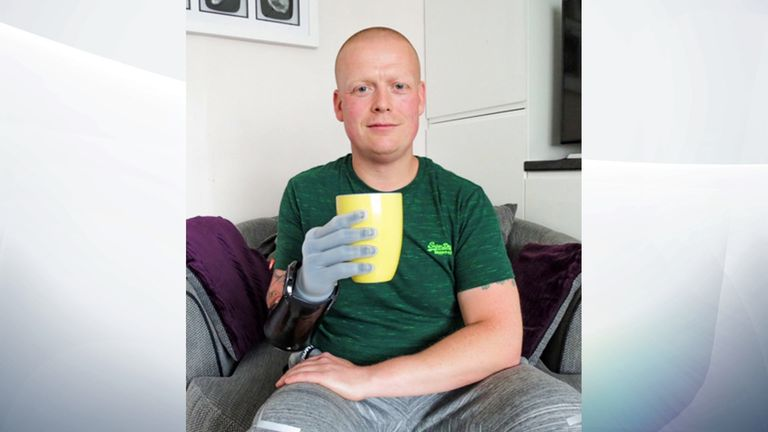 Ian McDonald says he can hold mugs, phones and change his daughter's nappy using his prosthetic hand. Pic: Digby Brown