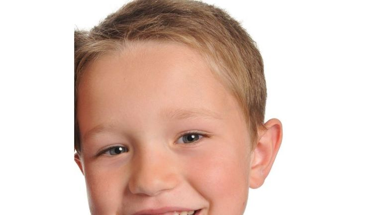Sebastian Hibberd died after staff failed to spot warning signs that part of his bowel had collapsed