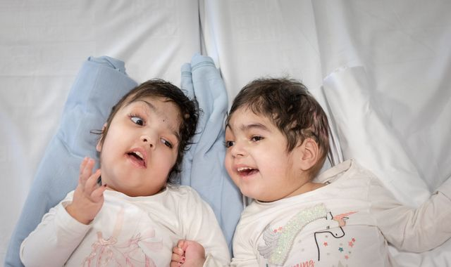 Surgeons who separated conjoined twins launch charity to fund similar operations