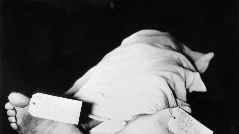 Two tags on the feet of bank robber John Dillinger, in the Cook County morge after he was shot by government agents