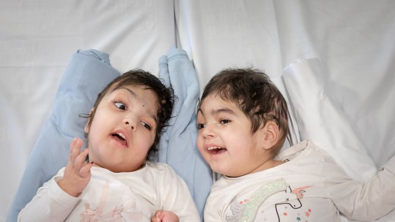 Safa, left, and Marwa underwent separation surgery at Great Ormond Street Hospital in London. Pic: Patricia McHugh
