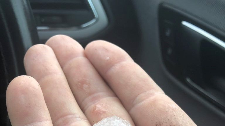 Gareth Walls tweeted a picture of one of the hailstones that hit his car in North Yorkshire. Pic: Twitter\@gareth_walls