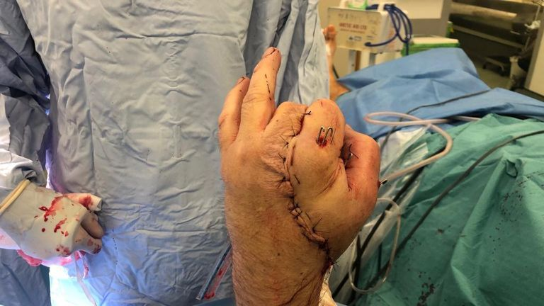 Anthony Lelliott's hand during surgery, after he suffered a double-level amputation after catching his hand in an electric saw