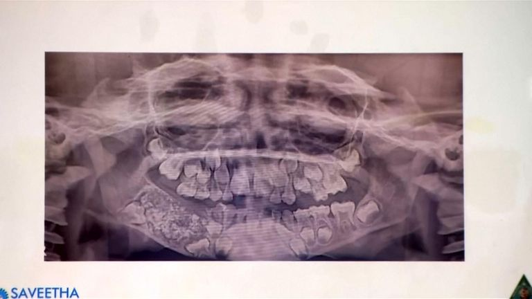An x-ray of the boy's jaw