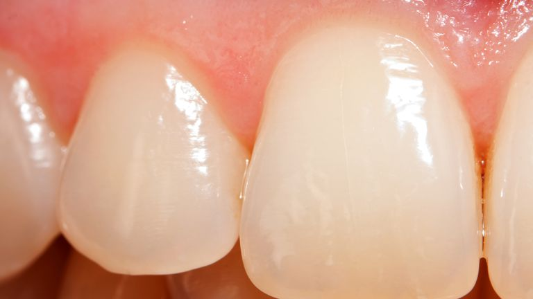 Despite being the hardest tissue in the body, enamel cannot self-repair