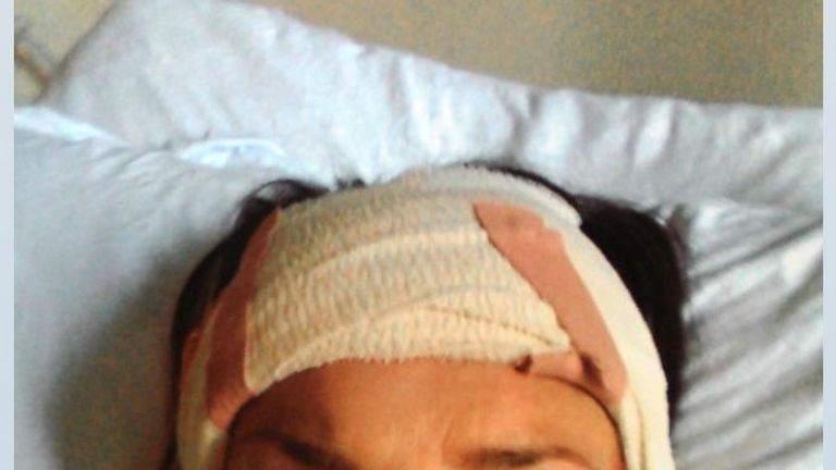 Rachel Williams during her recovery. Pic: Rachel Williams