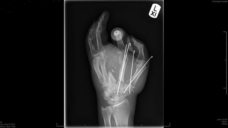 An x-ray of Anthony Lelliott's hand, who suffered a double-level amputation after catching his hand in an electric saw