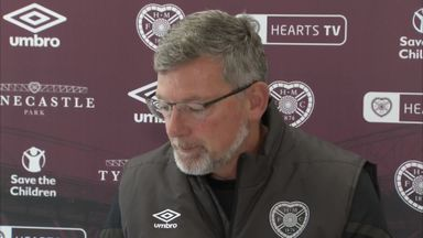 Levein: No time for derby day nerves