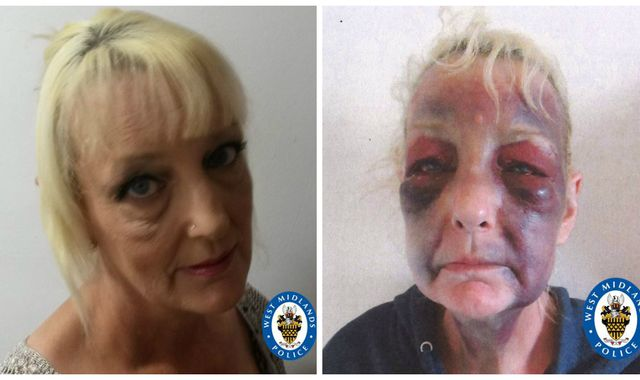 Domestic violence victim shares horrific image as partner who beat her is jailed for seven years