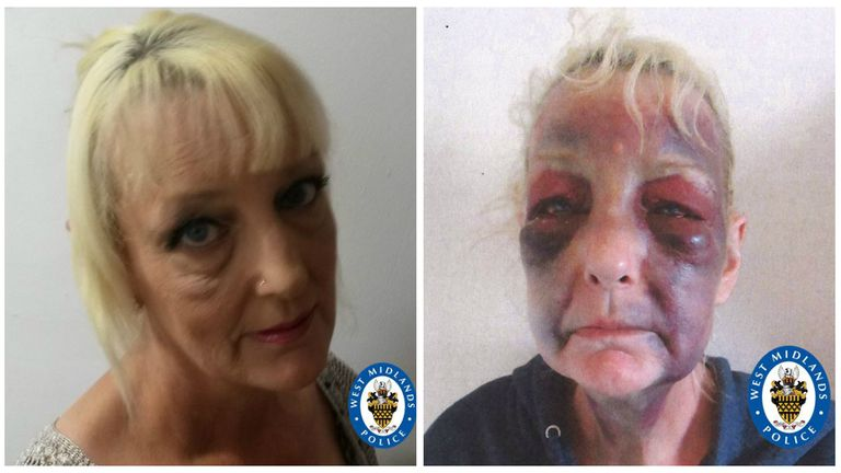 Lynn Hart suffered horrific injuries at the hands of her partner. Pic: West Midlands Police