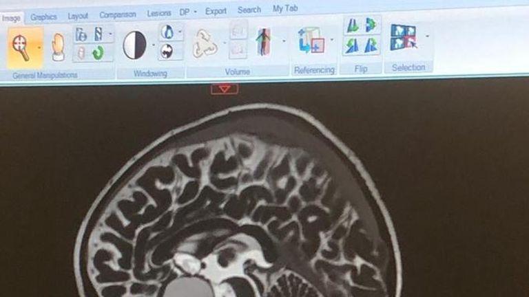 Scans revealed she had a Craniopharyngioma tumour