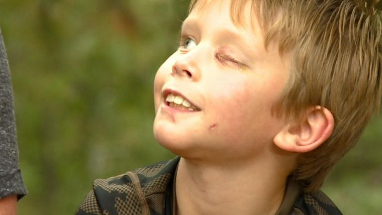 8-year-old Pike Carlson tried to fight back after was bit in the head and dragged down a hill by a mountain lion near his home in Bailey, Colorado.