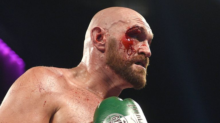 Tyson Fury during his heavyweight bout against Otto Wallin