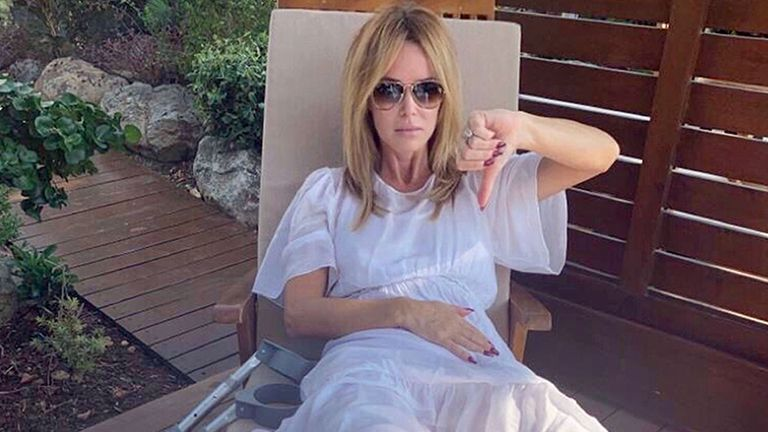 Amanda Holden after she broke her leg in two places following an accident during a family holiday