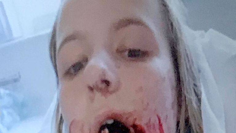 Emily Eccles before she had surgery to reconstruct her jaw