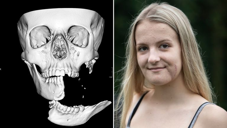 Emily Eccles has made a good recovery two months after a horse riding accident left her with a jaw hanging by 1cm of skin