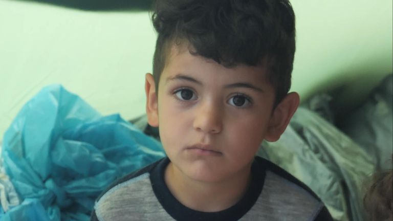 Children in Lesbos are often scarred by war, and the month-long journey to get here.
