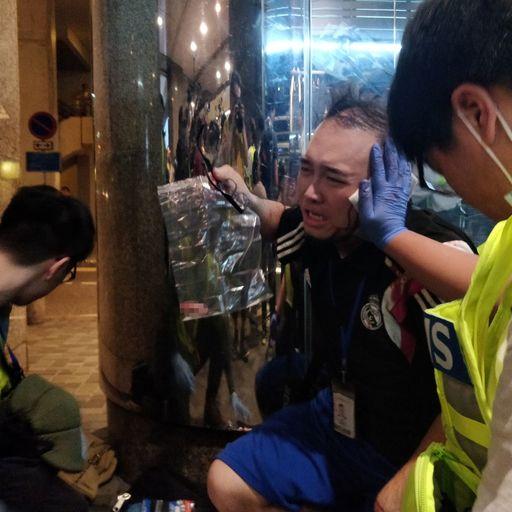 Hong Kong politician's ear 'bitten off' after knife fight breaks out