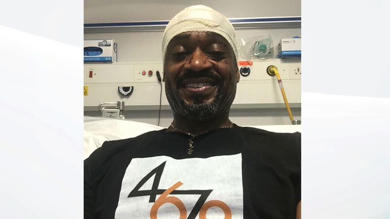 Kevin Young, 53, has shared pictures of his injuries on Twitter