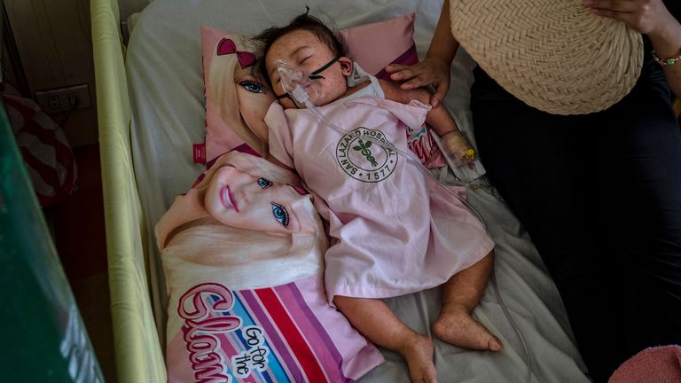 A child suffering from measles is treated in hospital in the Philippines