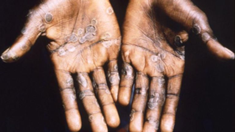 Monkeypox is mostly found in central and western Africa. Pic: World Health Organisation