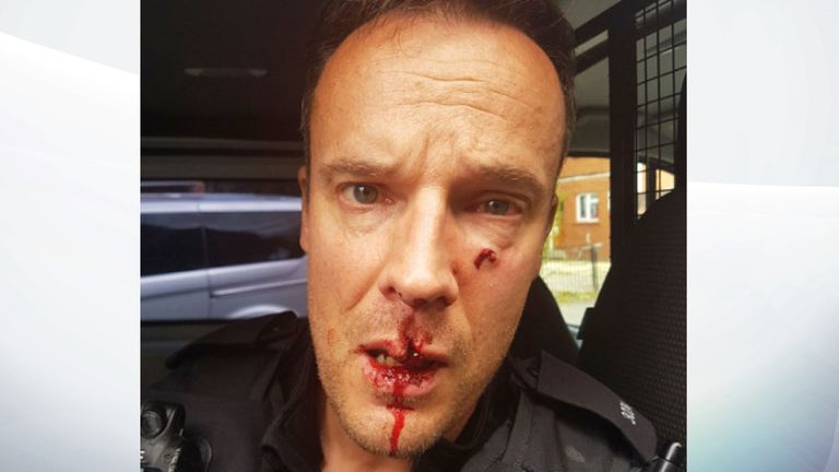 PC Andrew Gilbert needed 14 stitches for a deep cut to his upper lip