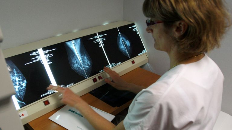 A radiologist examines breast X-rays