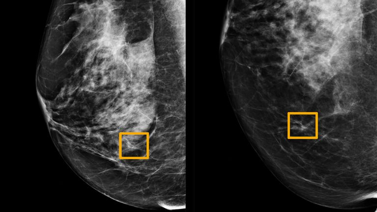 A yellow box indicates where an artificial intelligence (AI) system found cancer hiding inside breast tissue. Pic: Northwestern University