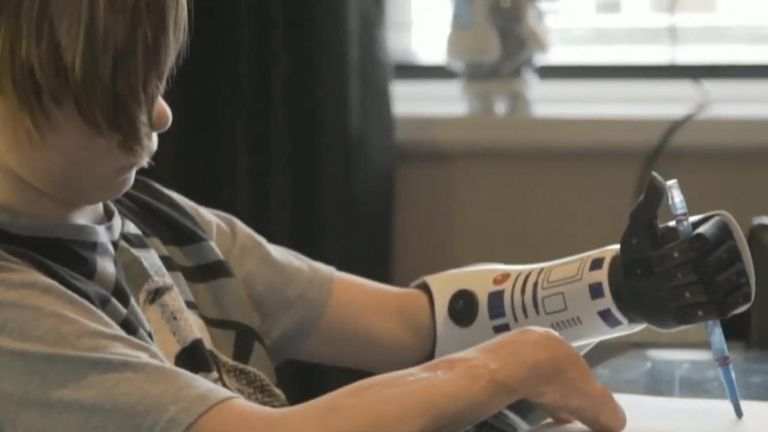 11-year-old Kye Vincent tries out his Star Wars themed bionic arm
