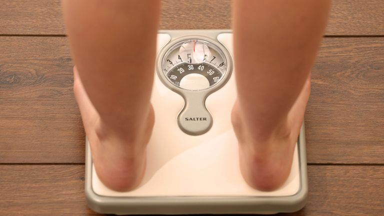 Figures for 2018/19 show 2,403 admissions of people aged 18 and under were for anorexia